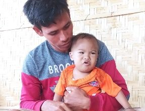 Photo of Idap Dwon Syndrome dan Pembuluh Darah Bocor, GMF Peduli dan LP2M Mitra Sehati Lotim Turun Tangan